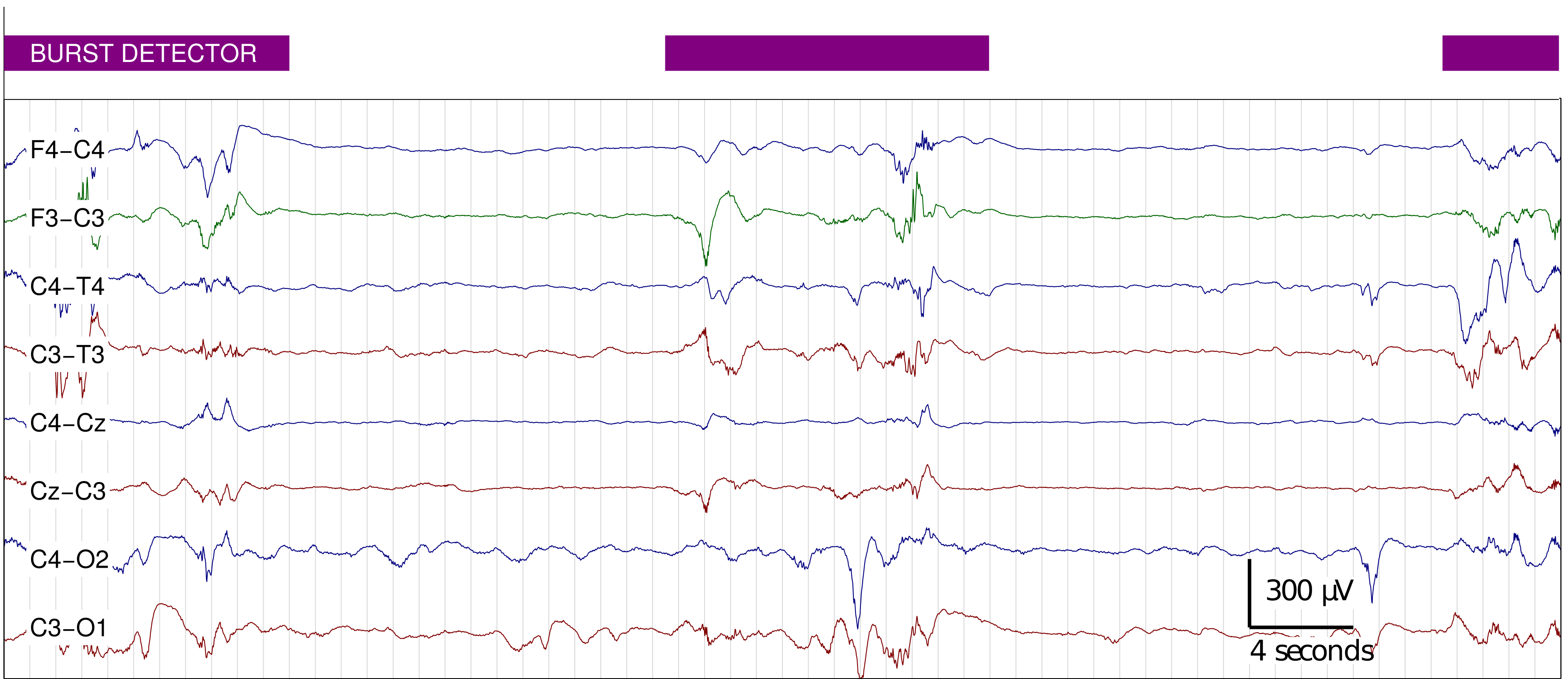 a review on alcoholic detection from eeg signals Nonlinear approach to brain signal modeling  in this study it was shown that recorded from alcoholic and control subjects the eeg  the eeg signals.